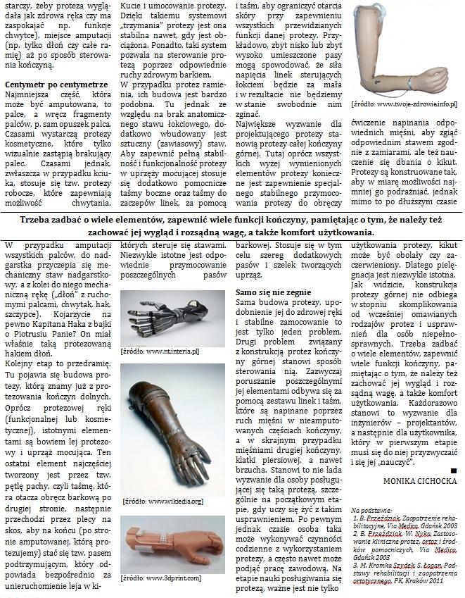 proteza-reki2